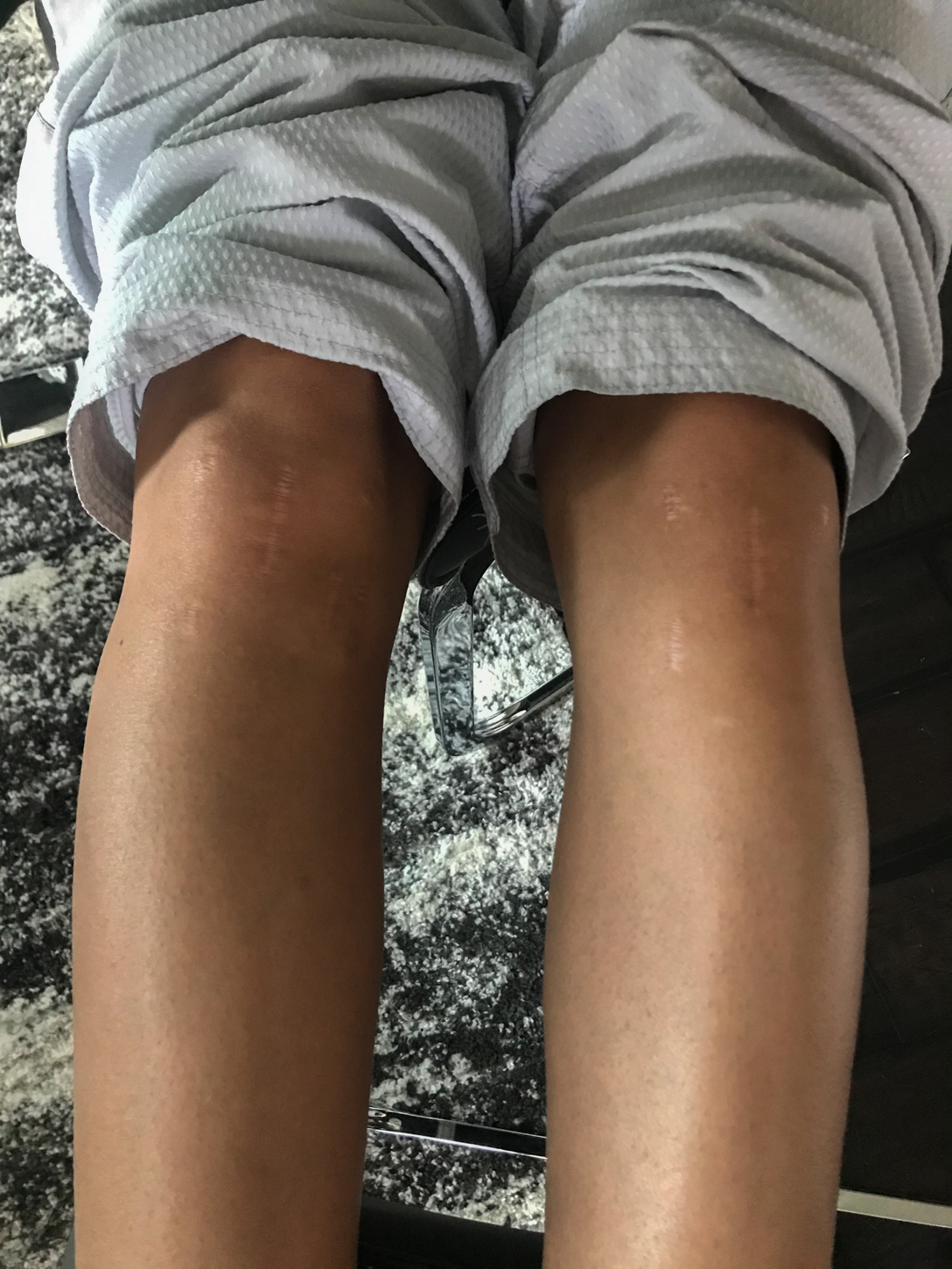 Victoria Stambaugh shows the scars from the six knee surgeries she's had